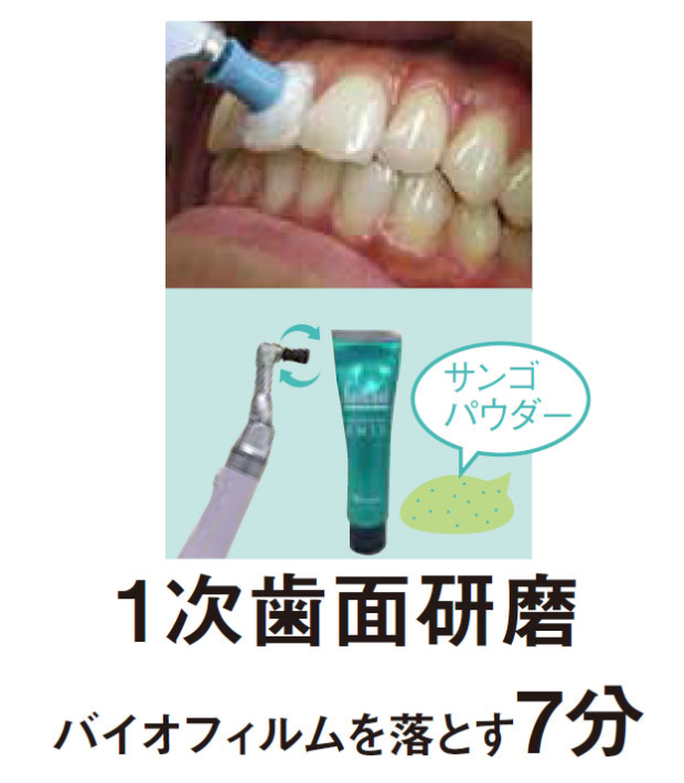 1次歯面研磨