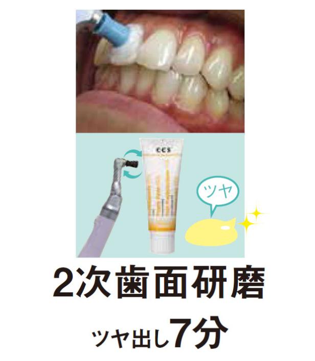 2次歯面研磨