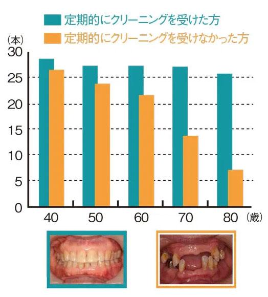 定期的な歯のクリーニング